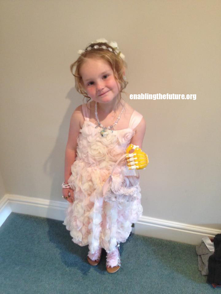 Abbi tests out her new Phoenix hand as a flower girl for a wedding!