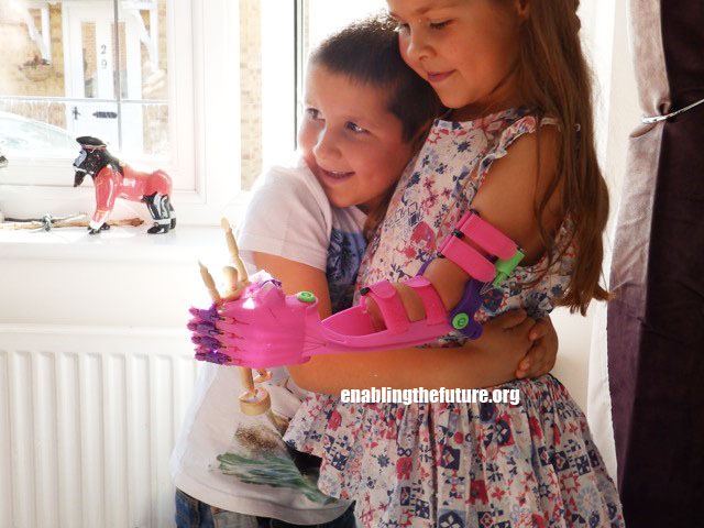 Isabella gets a hug from her brother while testing out her new Unlimbited arm!