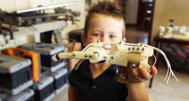 Liam with 3d printed hand