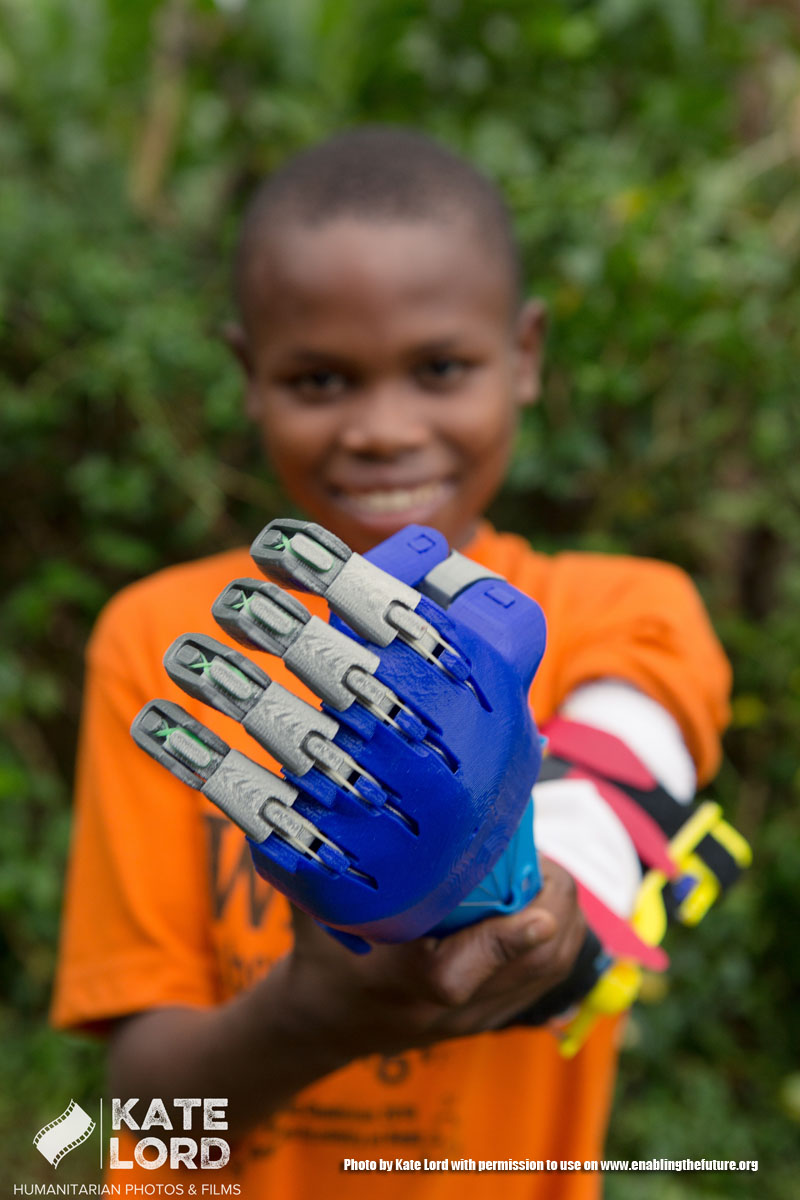 Amos, a student at Arlington Academy of Hope in Bududa district of Uganda, receives a prothetic arm that was 3D printed for him at Marymount University. (photo by Kate Lord)