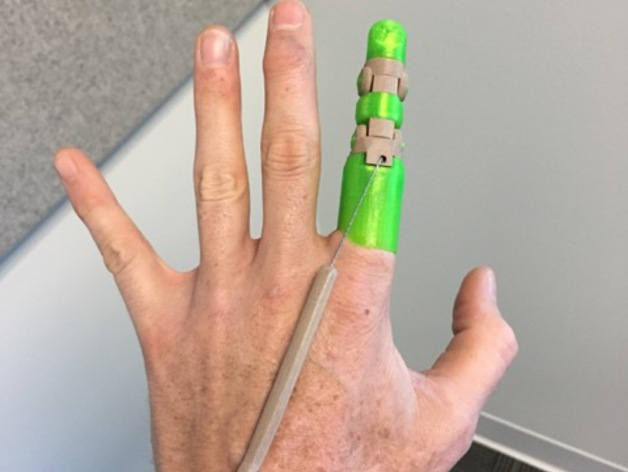 "Introducing the ""Knick Finger"" • 3D Printed Partial Finger"